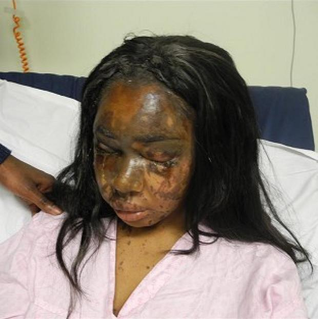 Bicester Advertiser: Naomi Oni, who was scarred for life in an acid attack, has accused police of incompetence over the investigation (Met Police)